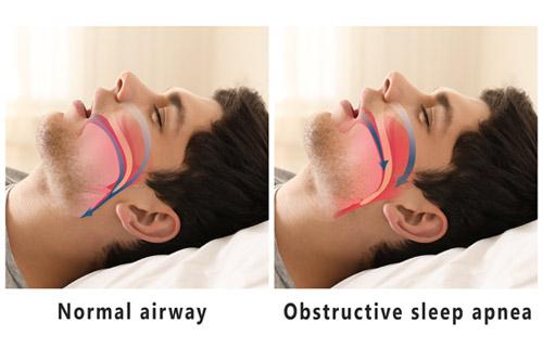 apnea osa